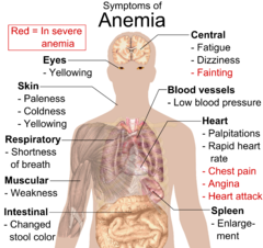 Gejala Symptoms Anemia