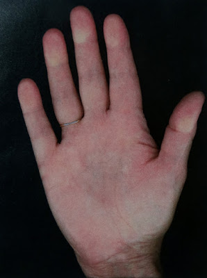 Dupuytrens Disease, my right hand prior to symptoms showing