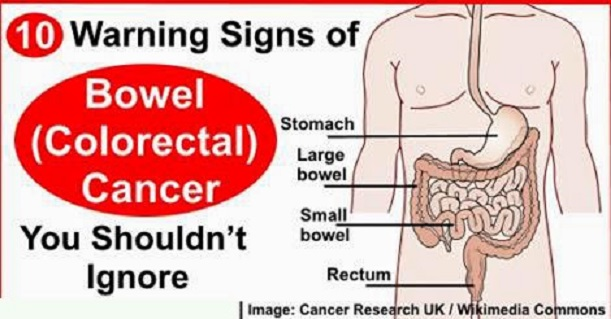 Bowel Cancer Symptoms for You to Know