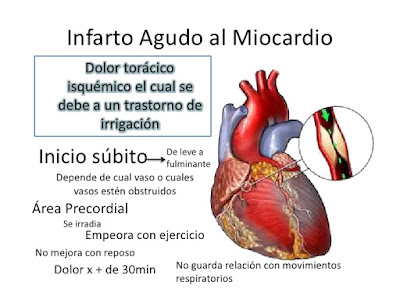 Que es infarto al Miocardio ?