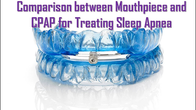 Treatment Options for Obstructive Sleep Apnea | Comparison between Mouthpiece and CPAP