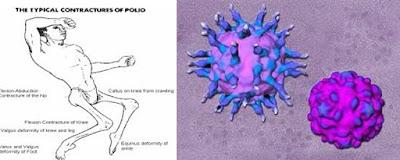 Virus Polio