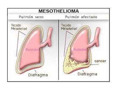 Que es Mesotelioma