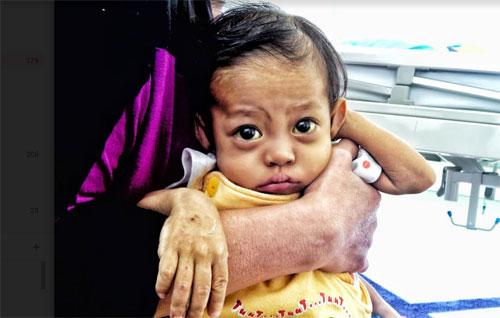 Gadis kecil yang bernama Laura Jhawa Arfandi (1,2 th) ini sudah lebih dari 2 minggu berada di rumah sakit. Bersama tubuhnya yang masih mungil Laura harus berjuang melawan rasa sakitnya. Foto Dok Dommpet Ummat