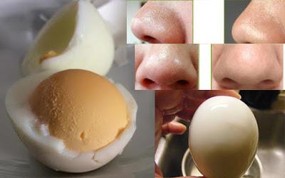 4 Cách trị mụn đầu đen ở mũi tận gốc hết mụn đến 99,9%