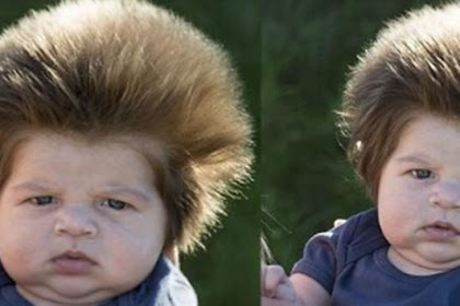 Baru Berusia 9 Minggu, Tapi Rambut Bayi Ini Lebat Banget