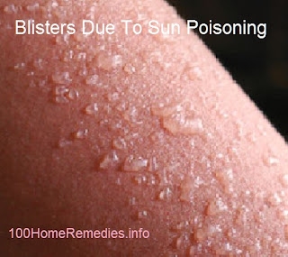 Sun poisoning symptoms blisters