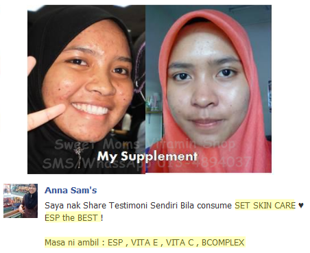 Image result for testimoni set kecantikan shaklee