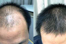 Natural Baldness Treatment Is A Growing Success
