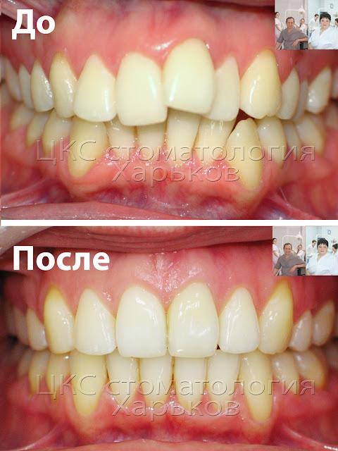 два фото до и после лечения брекетами