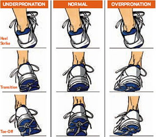 type of pronation you suffer