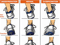 How to Select the Right Shoes for Overpronation