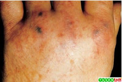 Petechial lesions in meningococcemia.