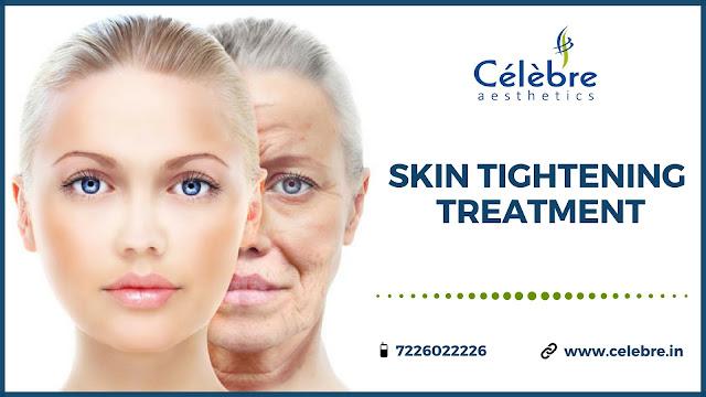 Skin Tightening Treatment In Surat