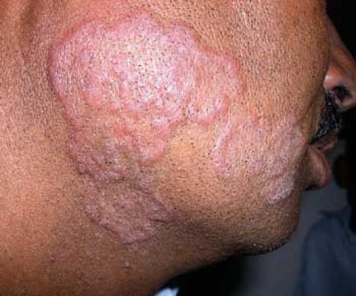 Cause Of Tinea Versicolor Natural Gut Health