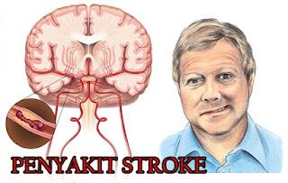 Terapi Untuk Mengobati Penyakit Stroke Secara Alami