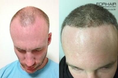 real hair real results, best fue in korea, hair transplants seoul, forhair korea