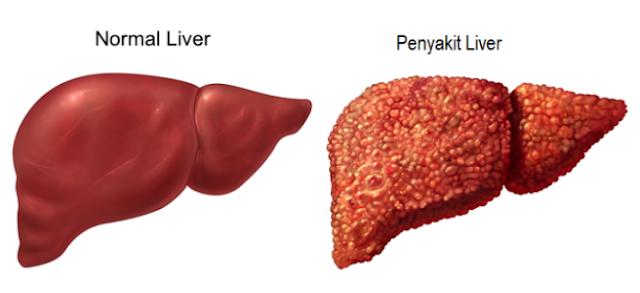 6 Gejala Penyakit Liver