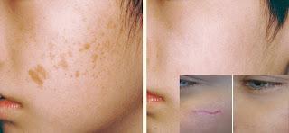 Comment faire disparaître une cicatrice sur la peau