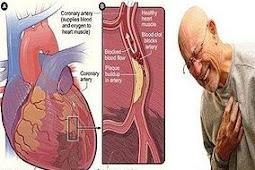Gangguan pada Sistem Peredaran Darah