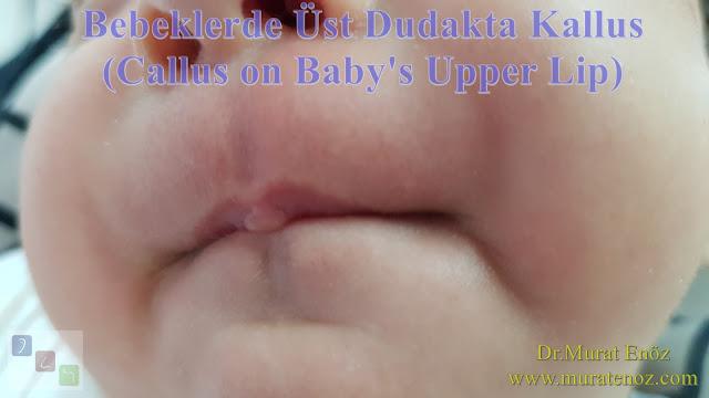 Bebeklerde üst dudak mueyenesi - Üst dudakta kallus - Emzirme nasırları - Emme pedleri - Emme yastıkçıkları - Sucking callus - Sucking calluses - Sucking pads - Doğru emzirme - Correct latching - Bebeklerde üst dudak bağı belirtileri - Dudak bağı nasıl muayene edilir? - Bebeklerde dudak bağı nasıl muayene edilir? - Bebeklerde üst dudak bağı nasıl fark edilir?