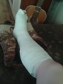 Teraz wracam na dobre – gips na nodze :)