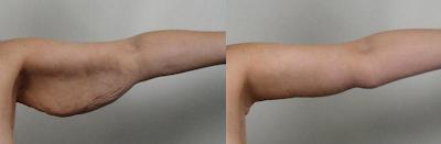 braquioplastia cirugia plastica de brazos en Guadalajara Mexico fotos antes y despues
