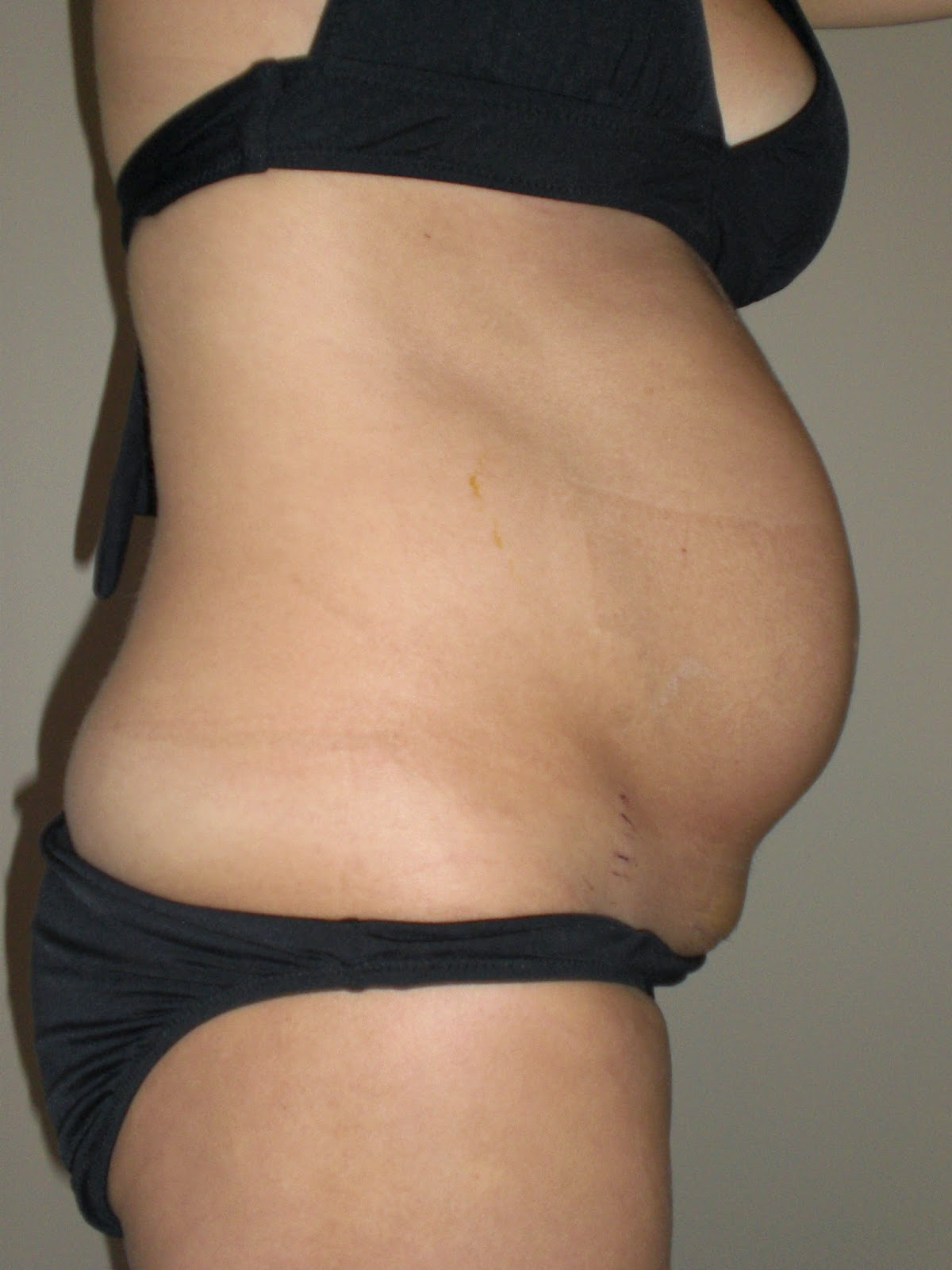 Lindsay Brin How To Get Your Body Back After C Section