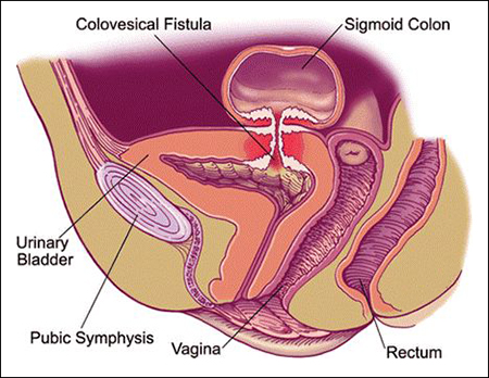 colovesicular fistula, colovesical fistula
