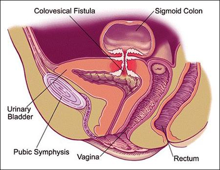 colovesicular fistula, colovesical fistula