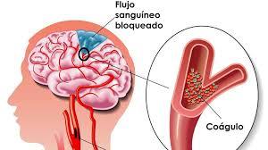 higiene bucal lesiones musculares