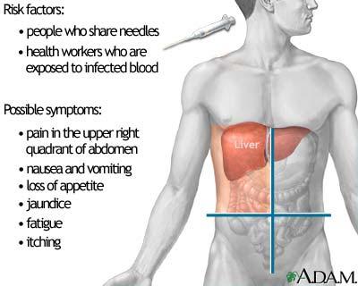 Most Effective Hepatitis Solution Pack