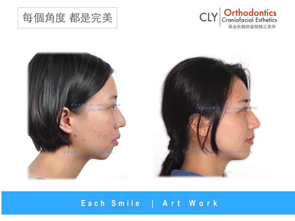 小下巴 @ CLY Orthodontics Studio   齊杏歯顎矯正專科 :: 痞客邦
