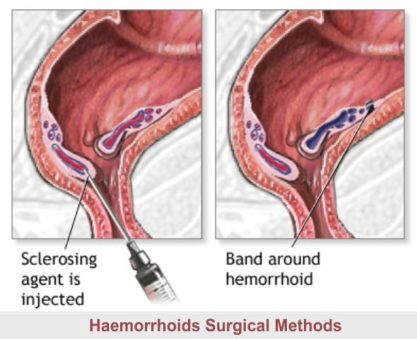 Haemorrhoids: Surgical Methods of Treatment