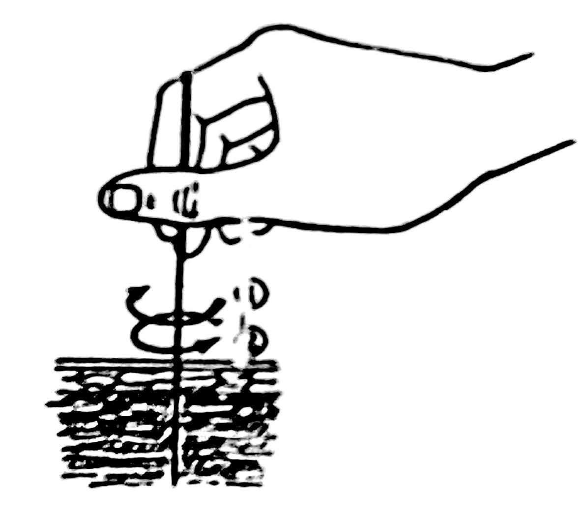 Metode Tonifikasi Dan Sedasi Akupunktur
