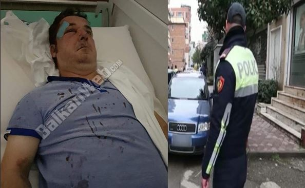 Businessman beaten by 5 persons in Tirana; was threatened before