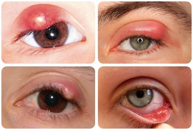 Obat Bintitan Di Dalam Kelopak Mata Terbukti Manjur