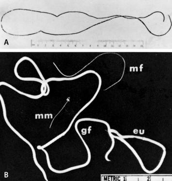Medical Laboratory Technology - SOP: Dracunculus Medinensis