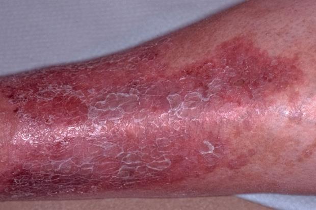 Photos Of Eczema On Adults Legs  Treatment For Eczema -2852