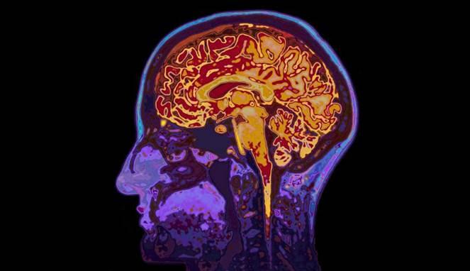 Sering Sakit Kepala? Mungkin Gejala 4 Penyakit ini