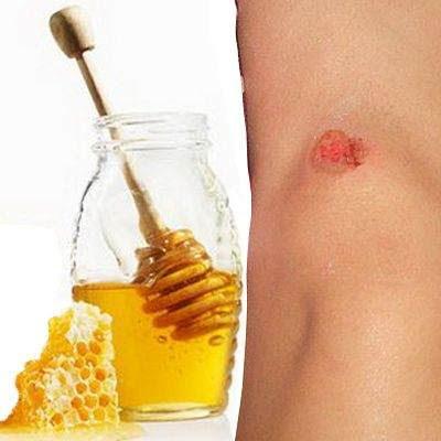 la miel para tratar heridas de la piel