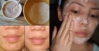 Misturinha que seca desinflama e reduz vermelhidão da acne