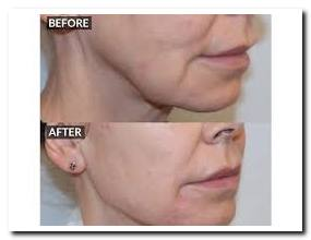 Zo skin care before and after