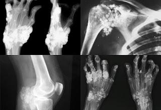 Cara menyembuhkan pengapuran tulang