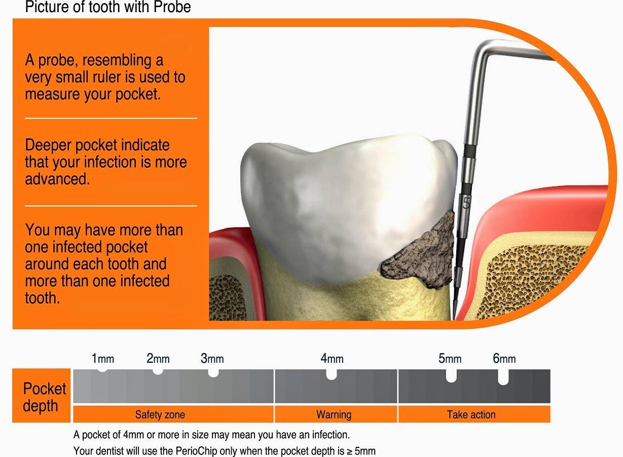 diagram for 5 gum labeled car dashboard the dental tourist 35 appointment 3 trip 2 gonzalez