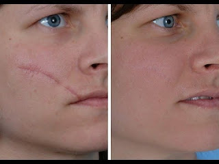 20 Amazing Home remedies for removing scars.