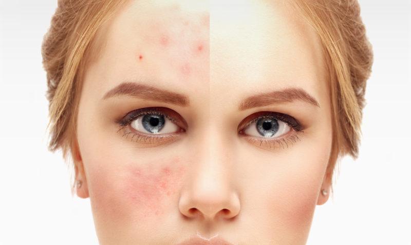 Dieta keto y acne