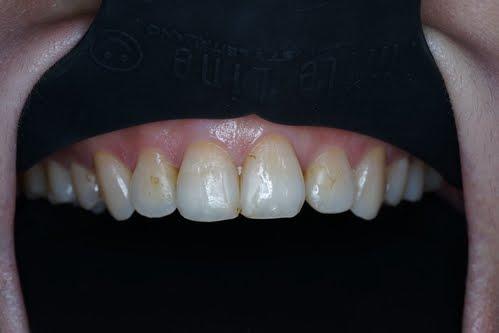 雙子星牙醫診所: 牙齒美白貼片