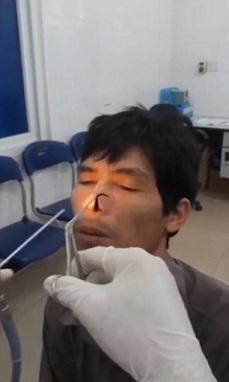 Pengangkatan lintah dari hidung seorang pria