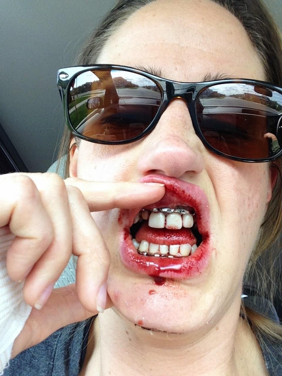 Wiring Jaw Shut For Broken